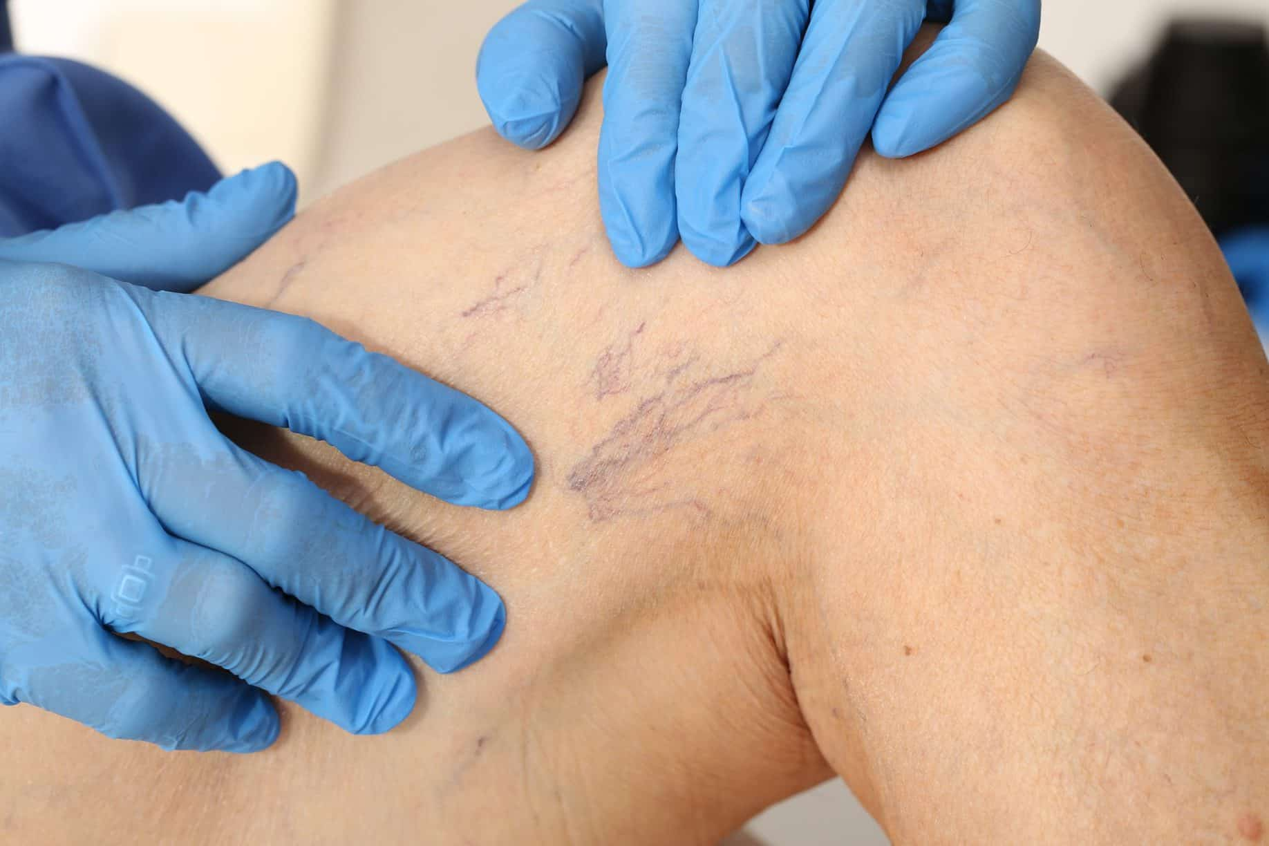 medical professional treating spider veins in boca raton